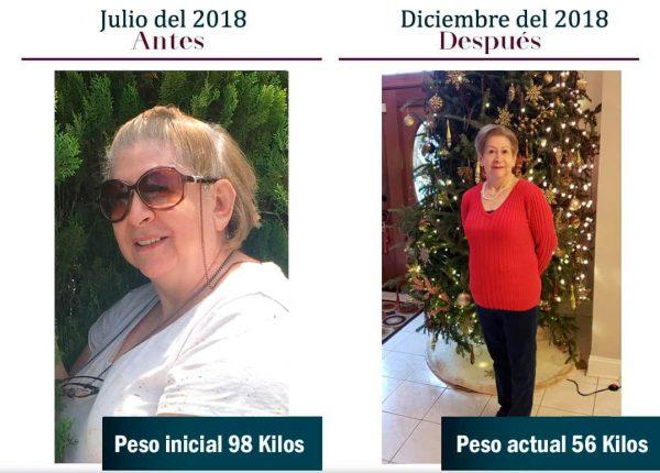 Antes y después de cirugía de obesidad