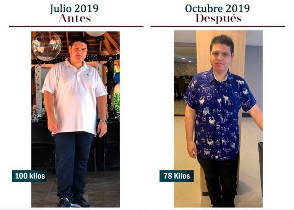 Cirugía a paciente con obesidad. Antes y después